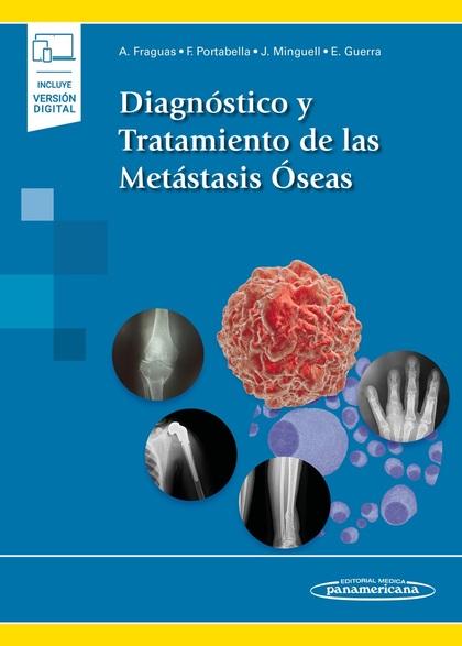 DIAGNÓSTICO Y TRATAMIENTO DE LAS METÁSTASIS ÓSEAS (INCLUYE VERSIÓN DIGITAL).