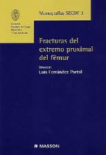 FRACTURAS DEL EXTREMO PROXIMAL DEL FÉMUR