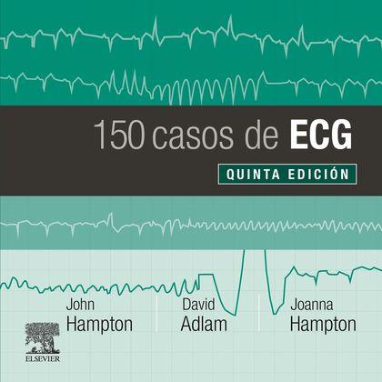 150 CASOS DE ECG