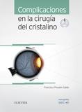 COMPLICACIONES EN LA CIRUGÍA DEL CRISTALINO + ACCESO WEB