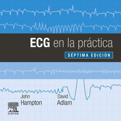 ECG EN LA PRACTICA