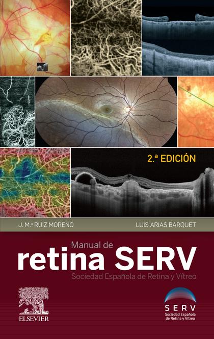 MANUEL DE RETINA SERV