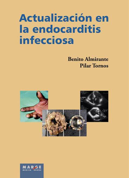 ACTUALIZACIÓN EN LA ENDOCARDITIS INFECCIOSA