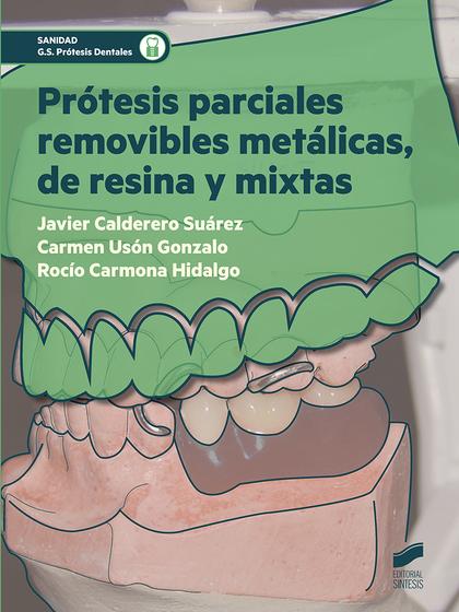 PRÓTESIS PARCIALES REMOVIBLES METÁLICAS, DE RESINA Y MIXTAS.