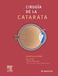 CIRUGÍA DE LA CATARATA.