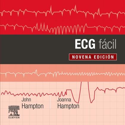 ECG FACIL